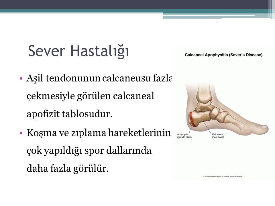 Sever Hastalığı Aşil tendonunun calcaneusu fazla çekmesiyle görülen calcaneal apofizit tablosudur.