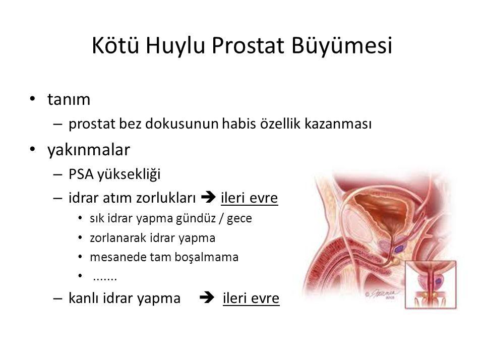 Kötü Huylu Prostat Büyümesi