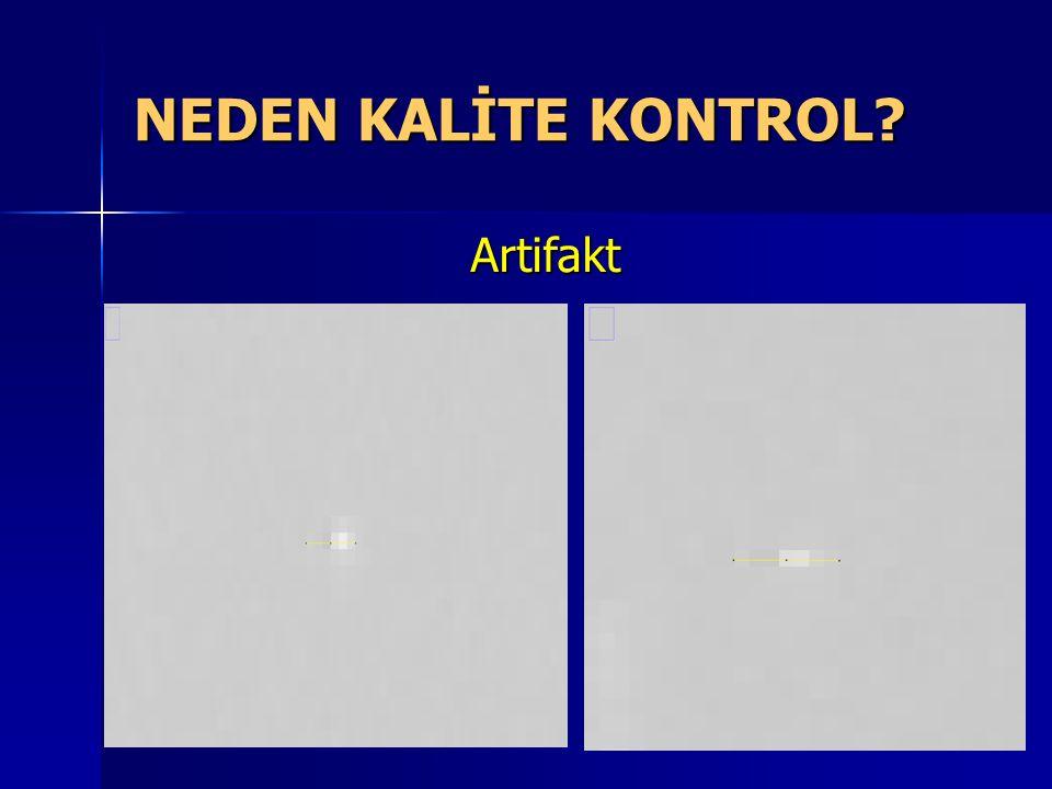 NEDEN KALİTE KONTROL Artifakt