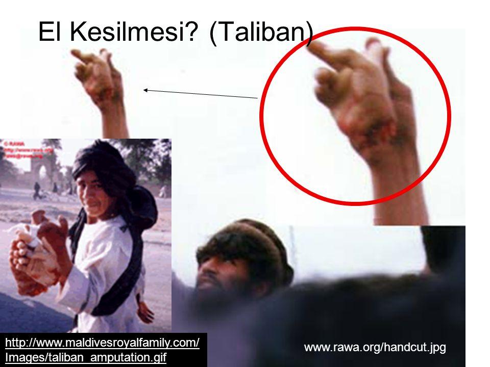 El Kesilmesi (Taliban)