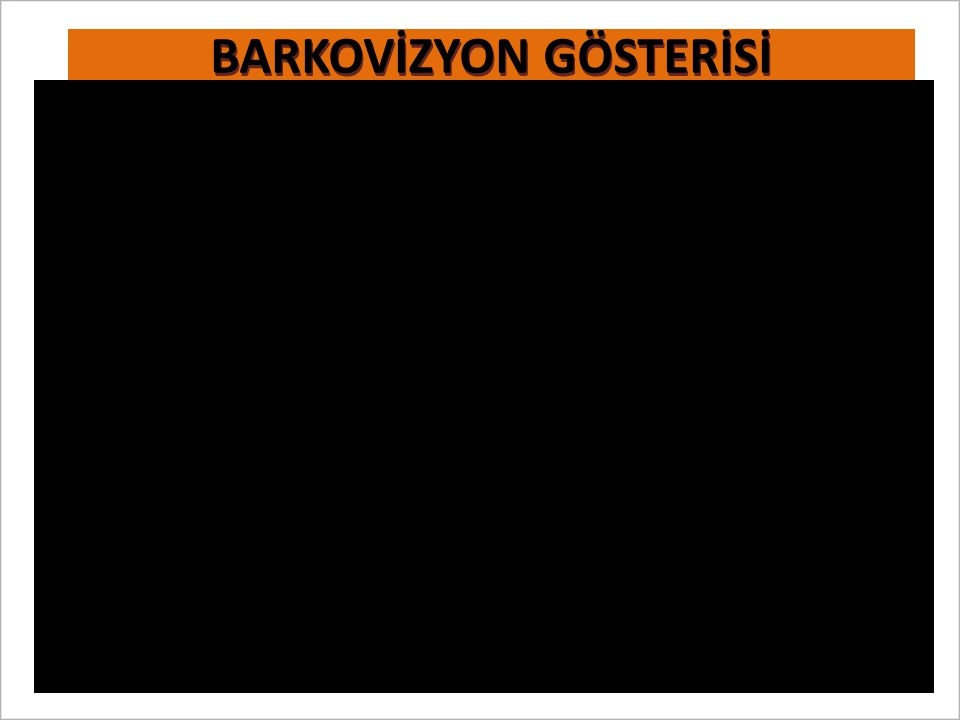 BARKOVİZYON GÖSTERİSİ