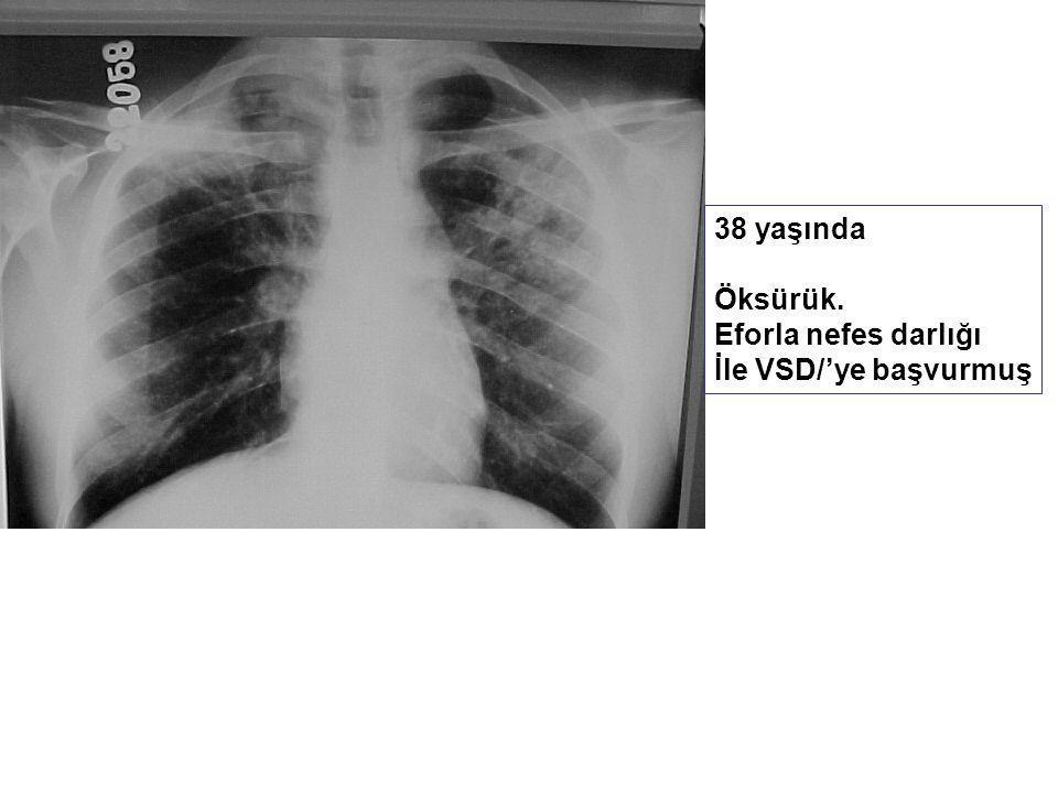 38 yaşında Öksürük. Eforla nefes darlığı İle VSD/'ye başvurmuş