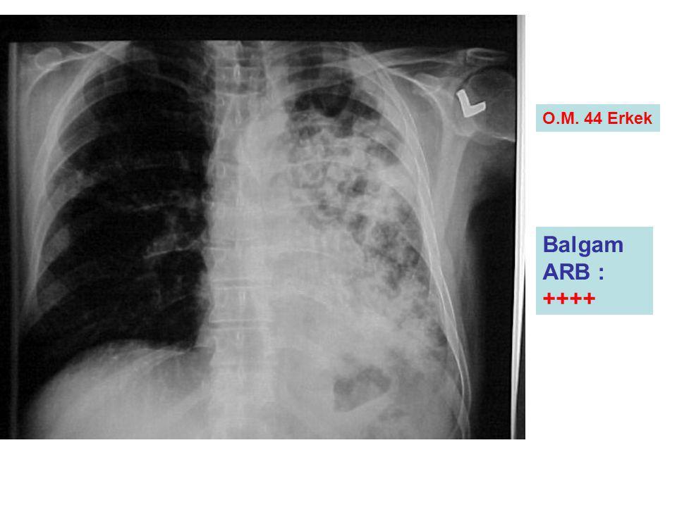 Balgam ARB : ++++ O.M. 44 Erkek İdrar kortizol: 32.3İrnsulin: 5.5