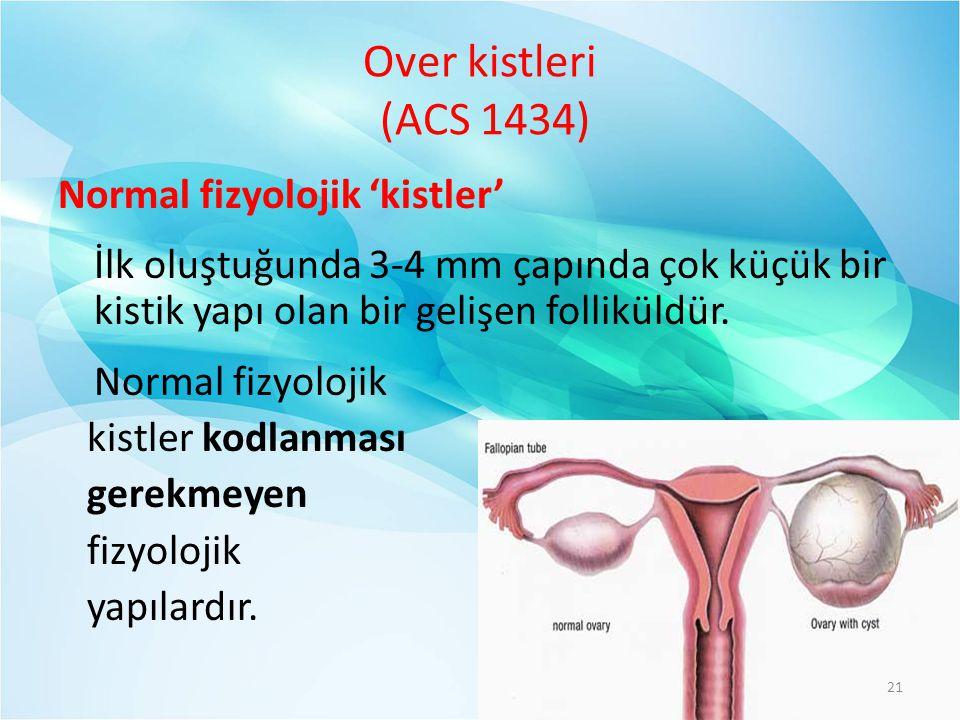 Over kistleri (ACS 1434) Normal fizyolojik 'kistler'