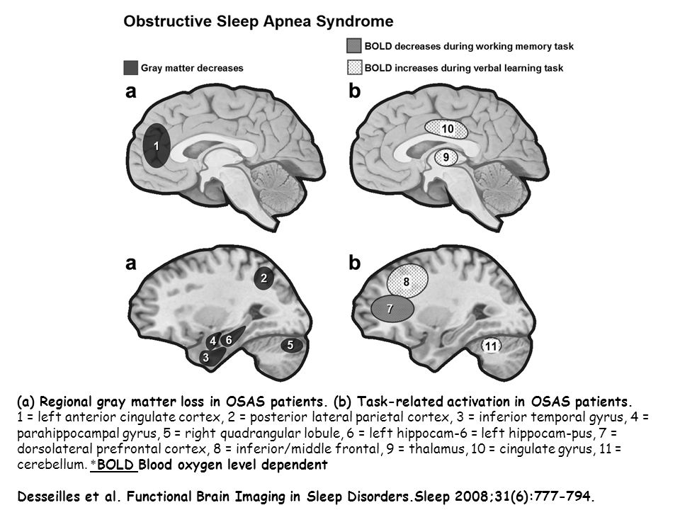(a) Regional gray matter loss in OSAS patients