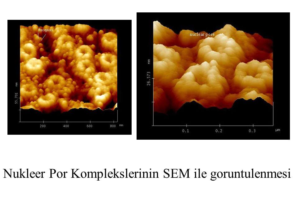 Nukleer Por Komplekslerinin SEM ile goruntulenmesi