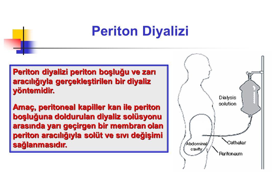 Periton Diyalizi Periton diyalizi periton boşluğu ve zarı