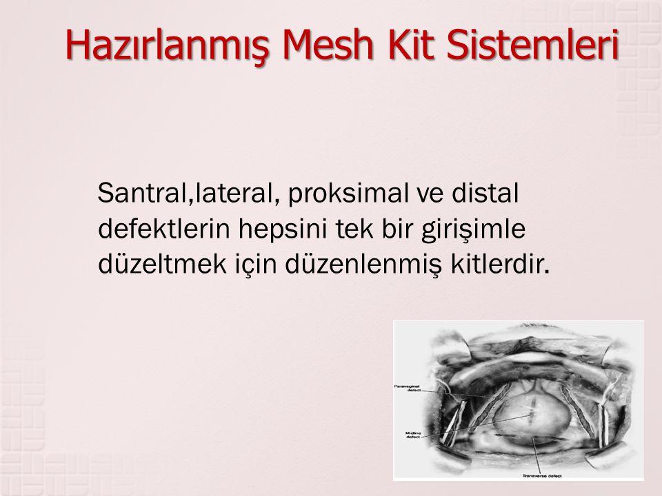 Hazırlanmış Mesh Kit Sistemleri
