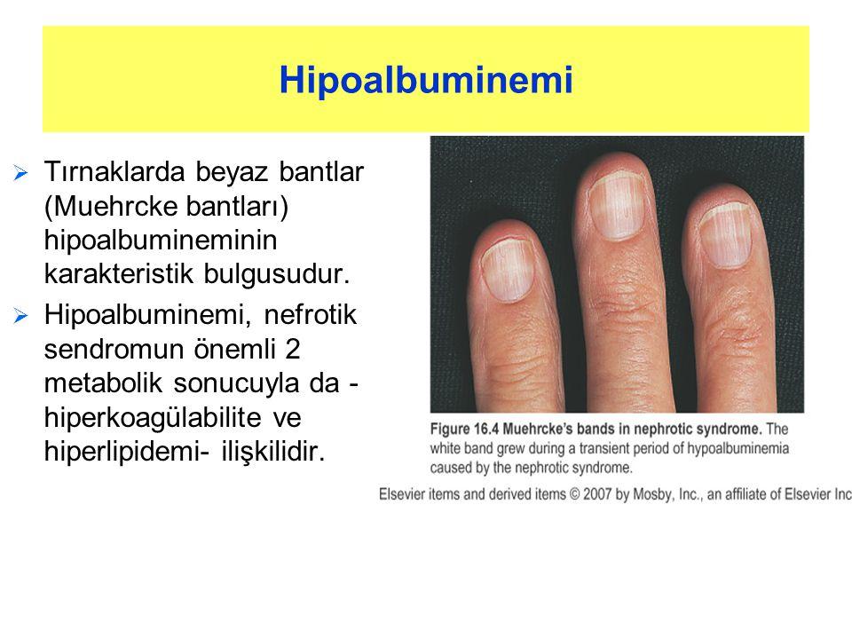 Hipoalbuminemi Tırnaklarda beyaz bantlar (Muehrcke bantları) hipoalbumineminin karakteristik bulgusudur.