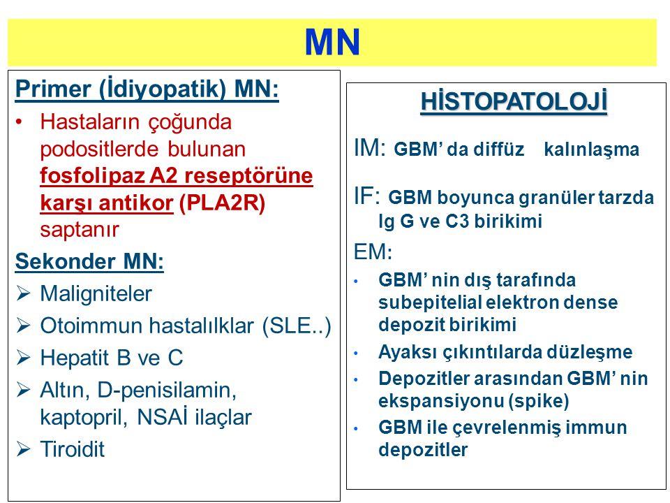 MN Primer (İdiyopatik) MN: HİSTOPATOLOJİ IM: GBM' da diffüz kalınlaşma