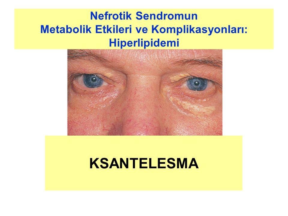 Metabolik Etkileri ve Komplikasyonları: Hiperlipidemi
