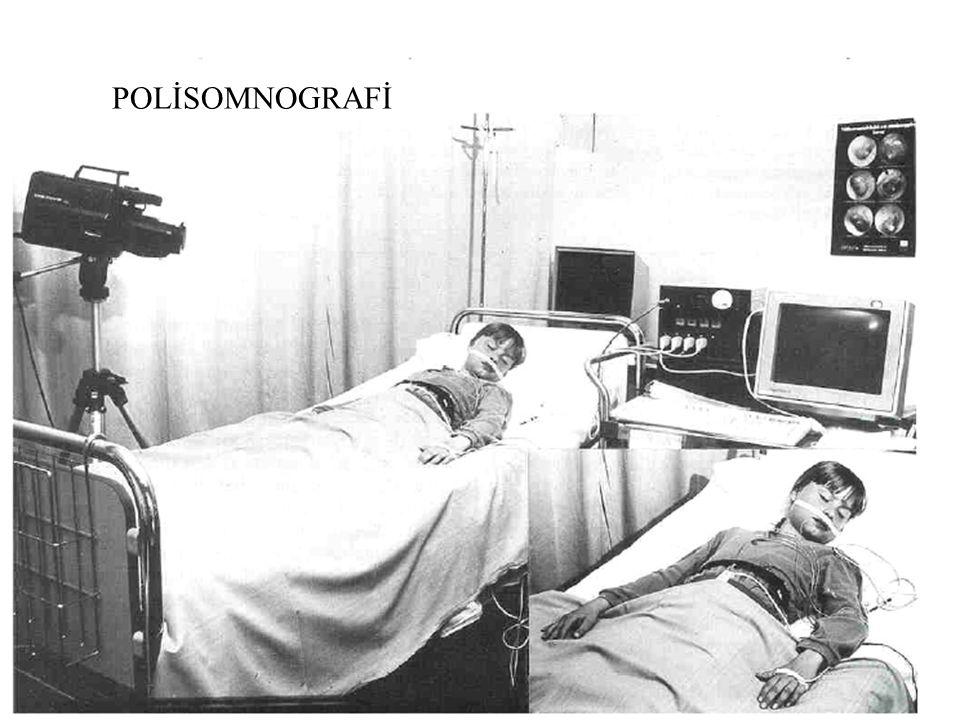 POLİSOMNOGRAFİ