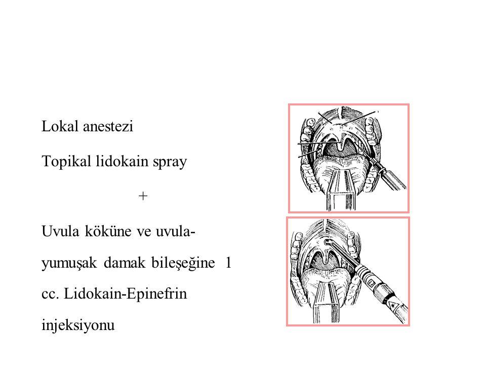Lokal anestezi Topikal lidokain spray. + Uvula köküne ve uvula-yumuşak damak bileşeğine 1 cc.