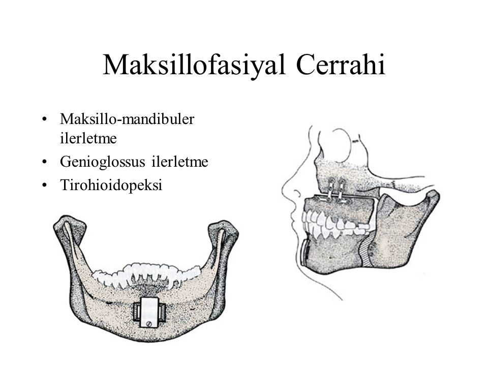 Maksillofasiyal Cerrahi