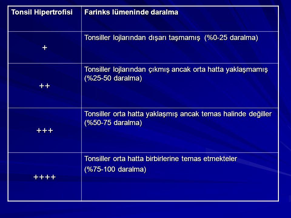 + ++ +++ ++++ Tonsil Hipertrofisi Farinks lümeninde daralma