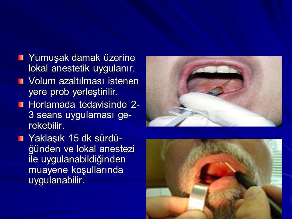 Yumuşak damak üzerine lokal anestetik uygulanır.