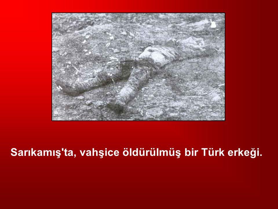 Sarıkamış ta, vahşice öldürülmüş bir Türk erkeği.