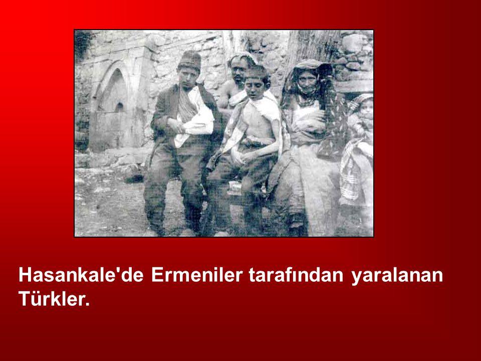 Hasankale de Ermeniler tarafından yaralanan Türkler.