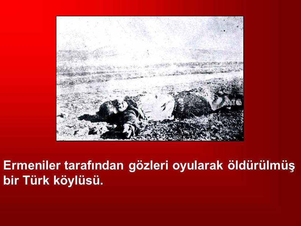 Ermeniler tarafından gözleri oyularak öldürülmüş bir Türk köylüsü.