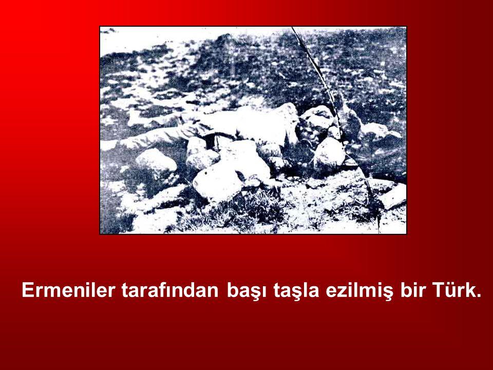 Ermeniler tarafından başı taşla ezilmiş bir Türk.