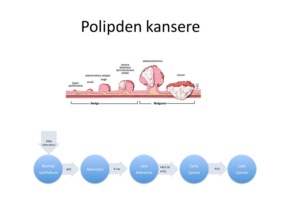 Polipden kansere