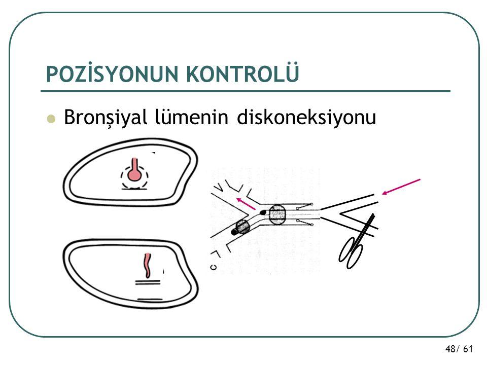 POZİSYONUN KONTROLÜ Bronşiyal lümenin diskoneksiyonu