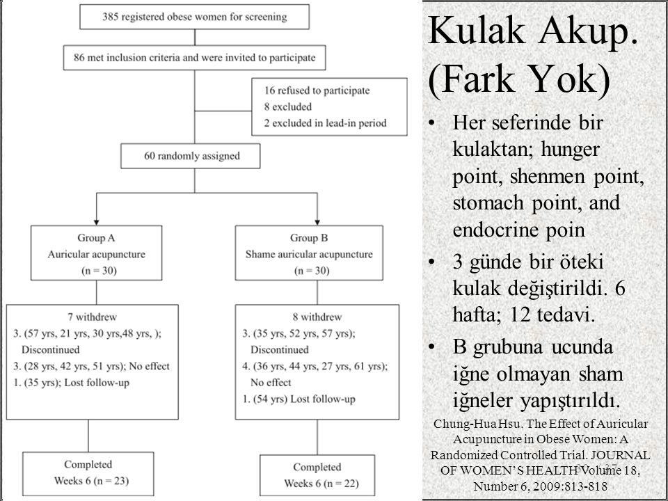 Kulak Akup. (Fark Yok) Her seferinde bir kulaktan; hunger point, shenmen point, stomach point, and endocrine poin.