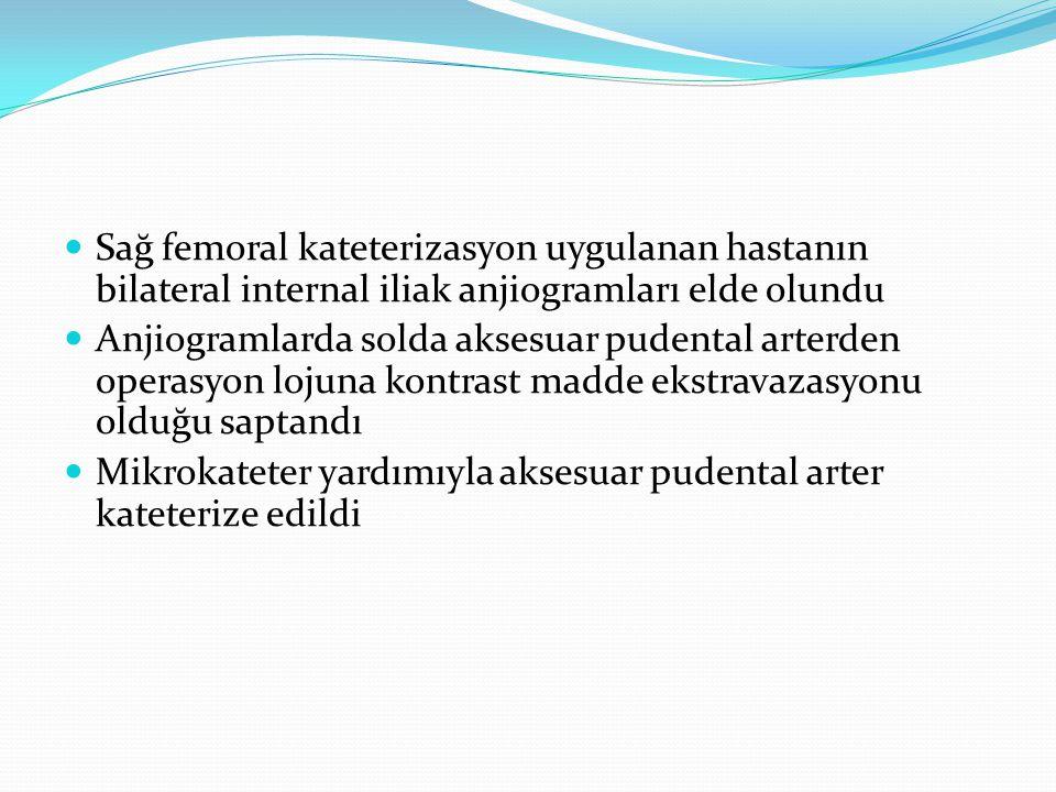 Sağ femoral kateterizasyon uygulanan hastanın bilateral internal iliak anjiogramları elde olundu