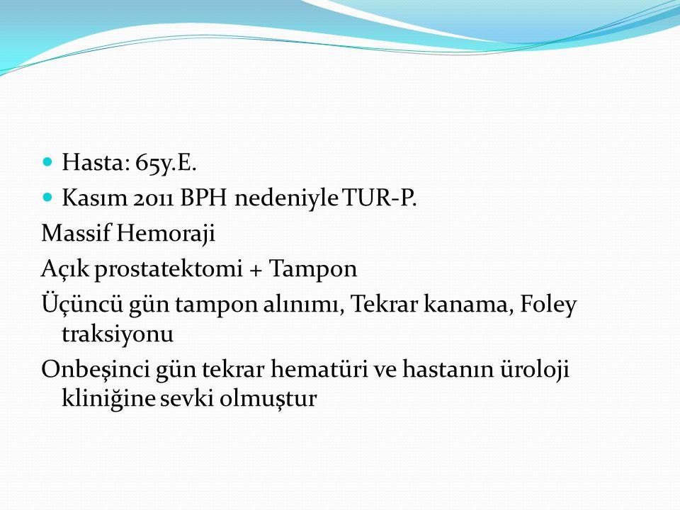 Hasta: 65y.E. Kasım 2011 BPH nedeniyle TUR-P. Massif Hemoraji. Açık prostatektomi + Tampon.