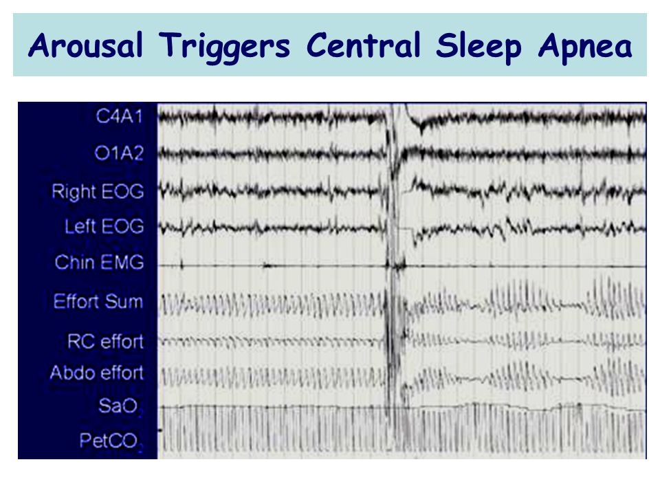 Arousal Triggers Central Sleep Apnea