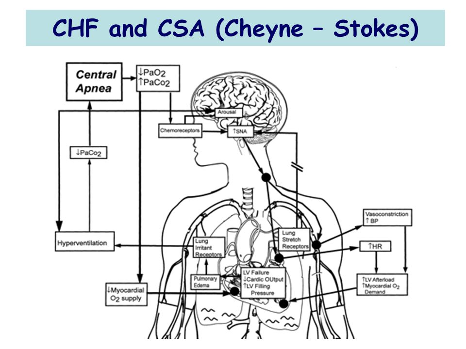 CHF and CSA (Cheyne – Stokes)