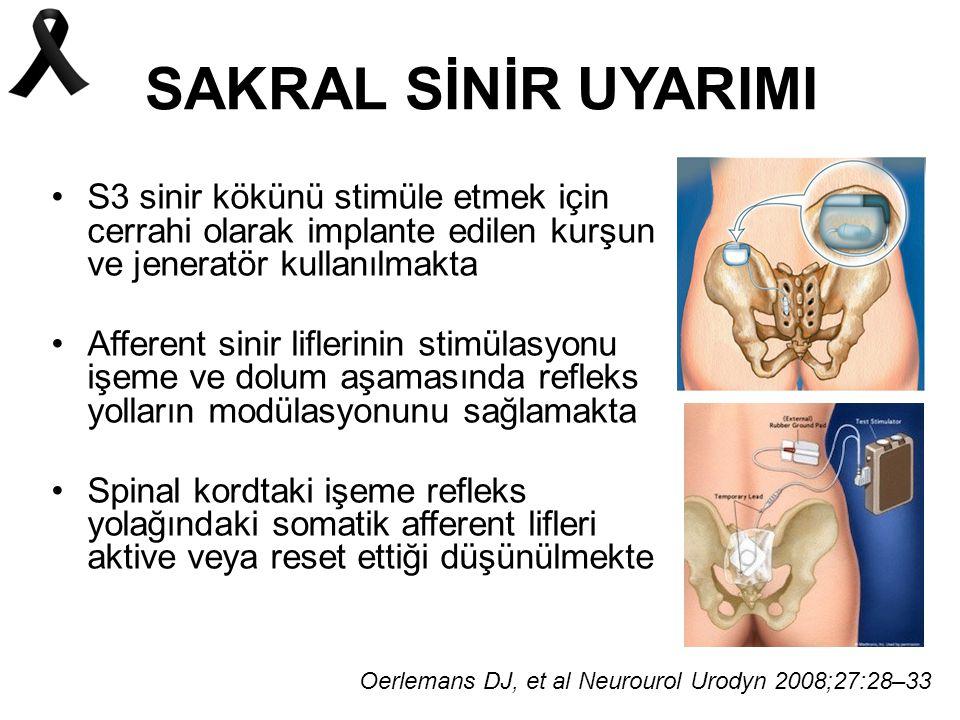 SAKRAL SİNİR UYARIMI S3 sinir kökünü stimüle etmek için cerrahi olarak implante edilen kurşun ve jeneratör kullanılmakta.