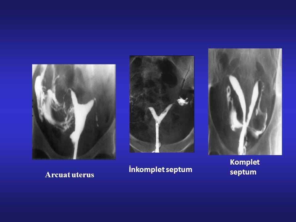 Komplet septum İnkomplet septum Arcuat uterus