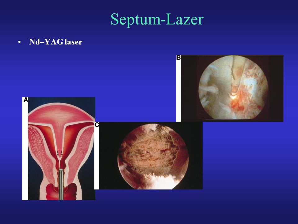 Septum-Lazer Nd–YAG laser