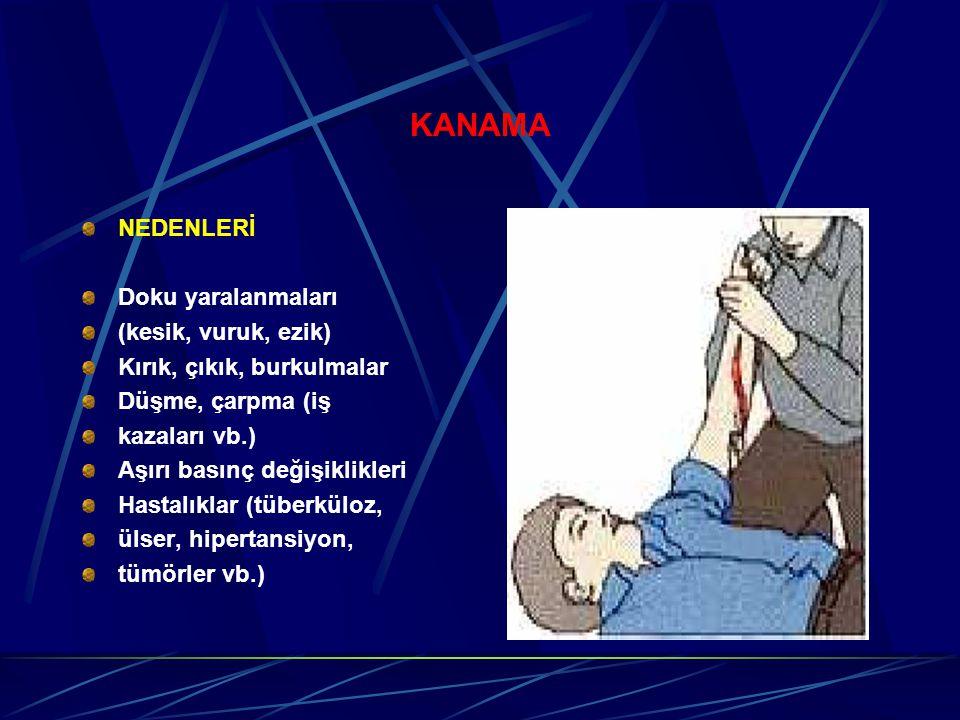 KANAMA NEDENLERİ Doku yaralanmaları (kesik, vuruk, ezik)
