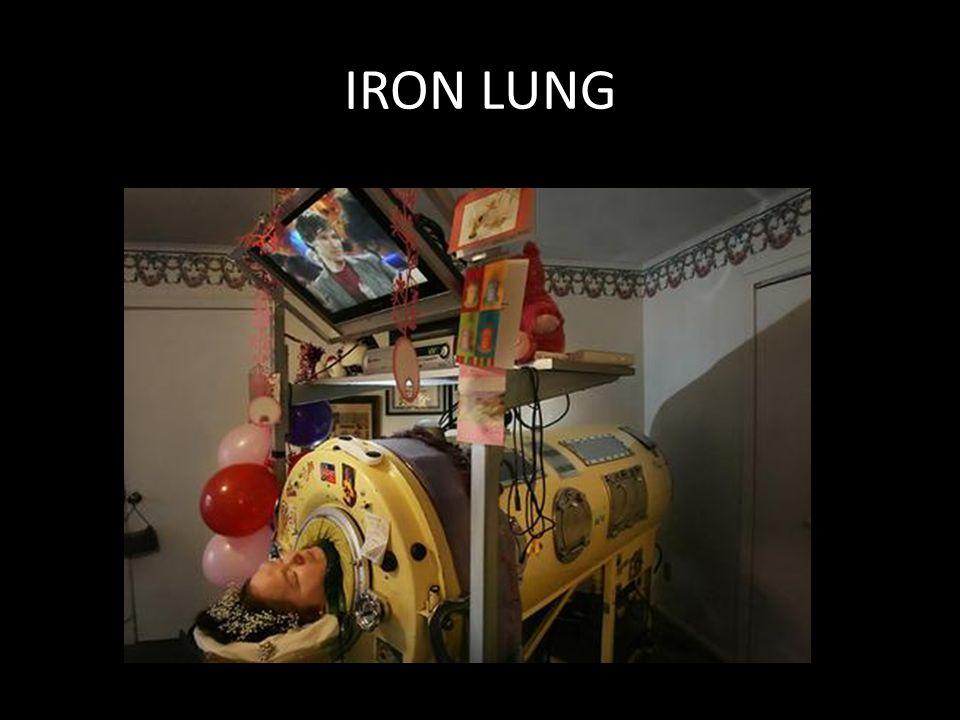 IRON LUNG Dianne Odell, 1947-2008, ABD. 3 yaşından ölene dek demir akciğer de