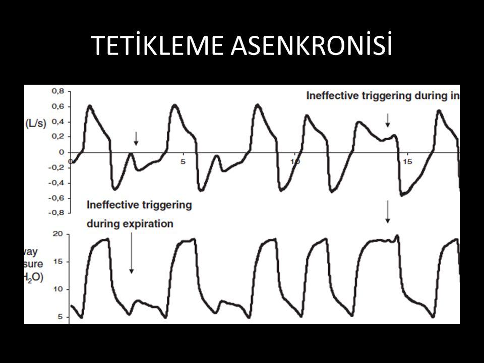 TETİKLEME ASENKRONİSİ