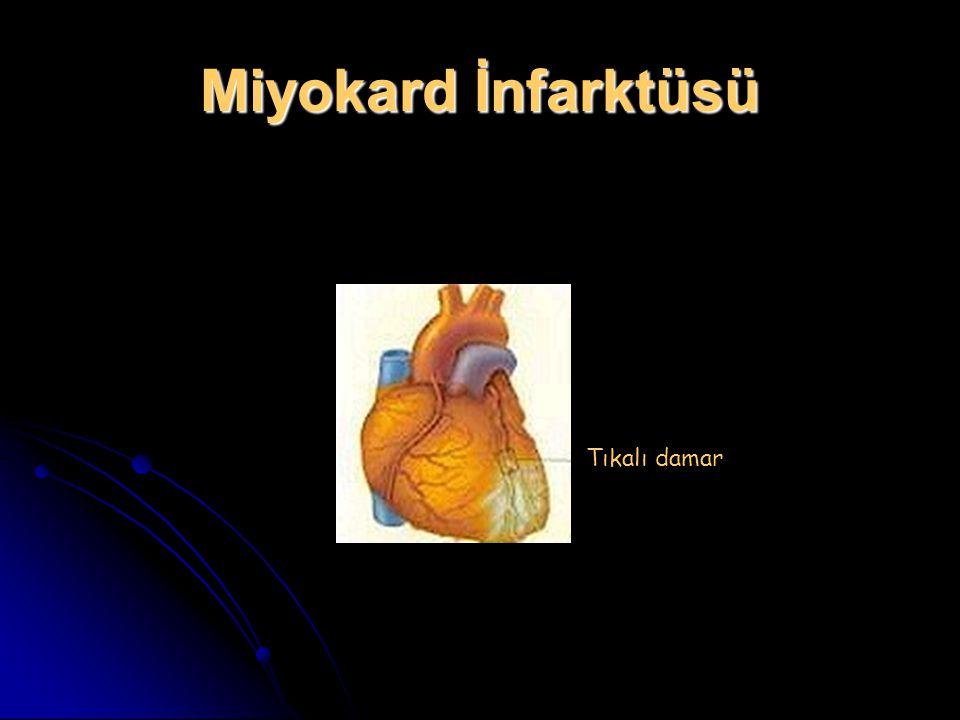 Miyokard İnfarktüsü Tıkalı damar
