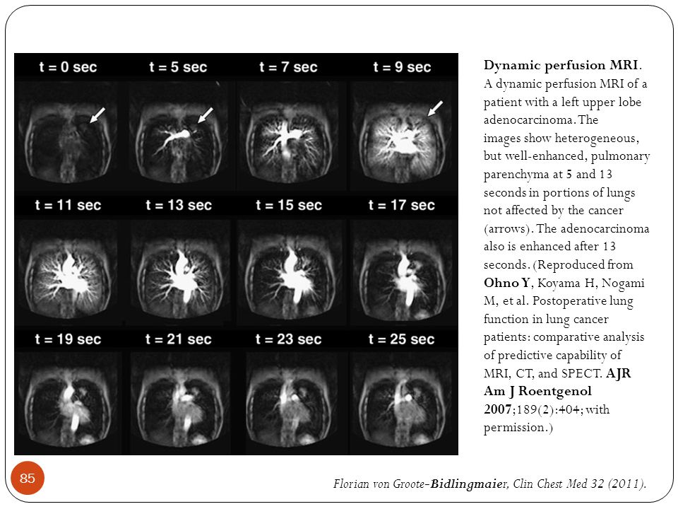 Dynamic perfusion MRI. A dynamic perfusion MRI of a patient with a left upper lobe adenocarcinoma. The