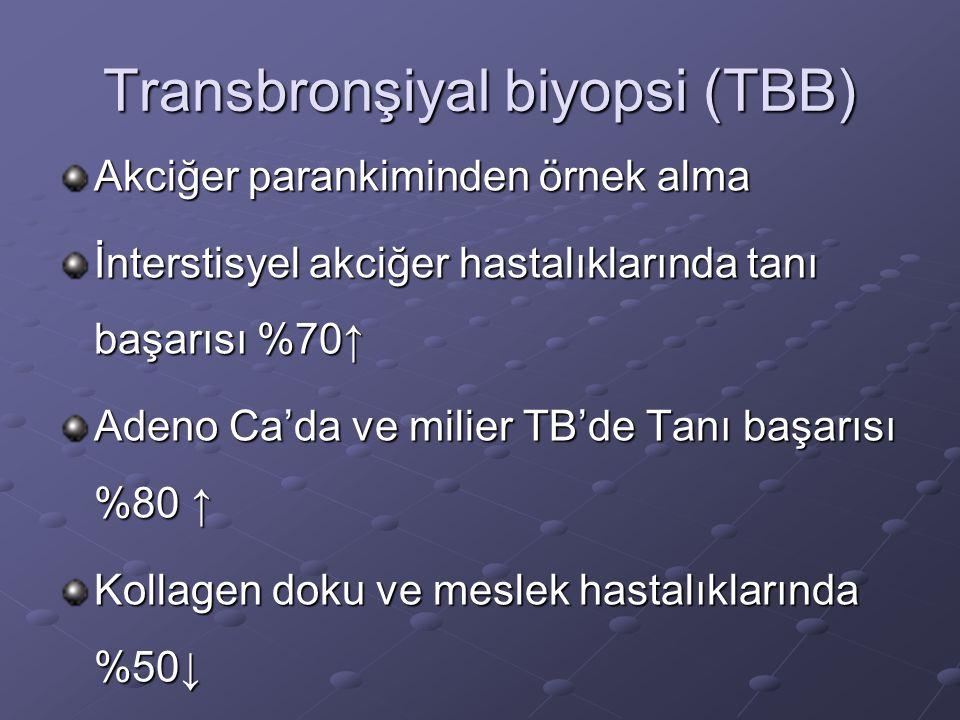 Transbronşiyal biyopsi (TBB)