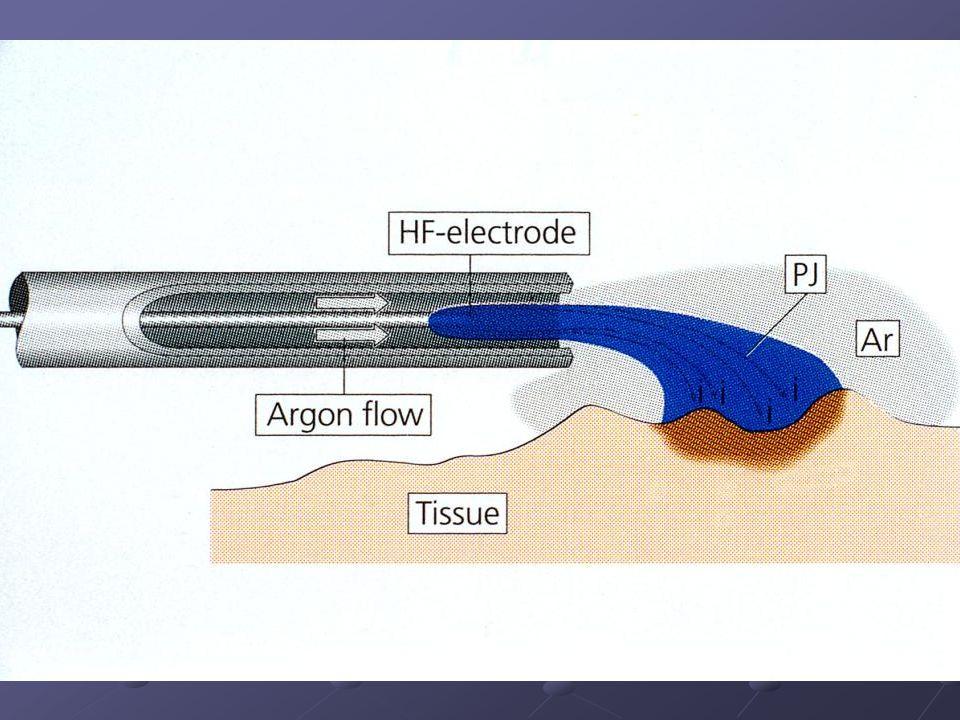 Şekil 2. Argon plazma koagülasyonunun şematizasyonu