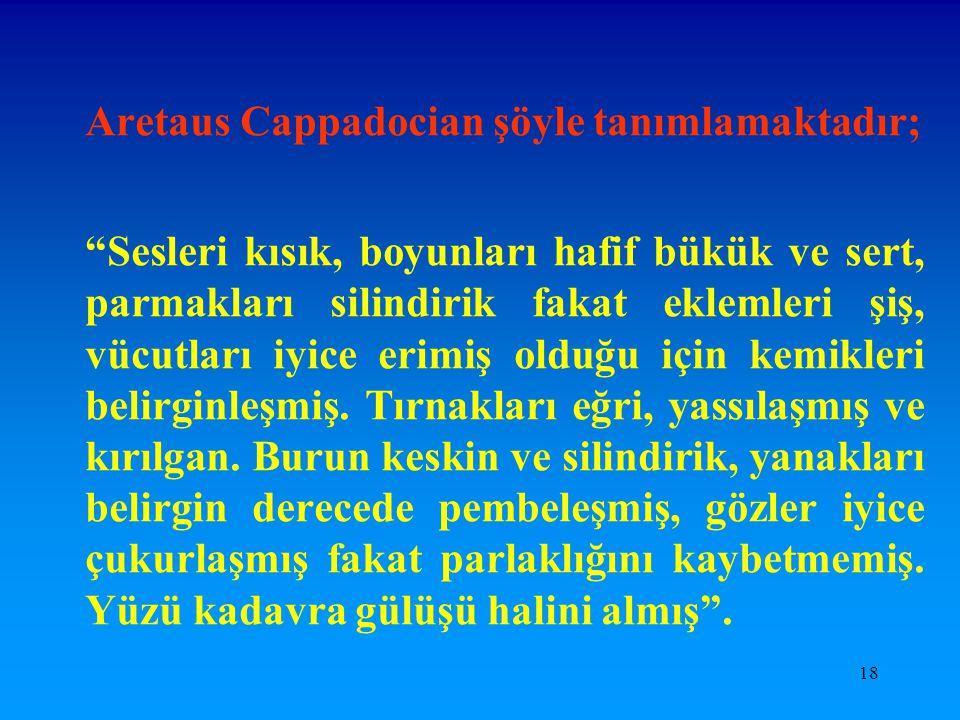 Aretaus Cappadocian şöyle tanımlamaktadır;