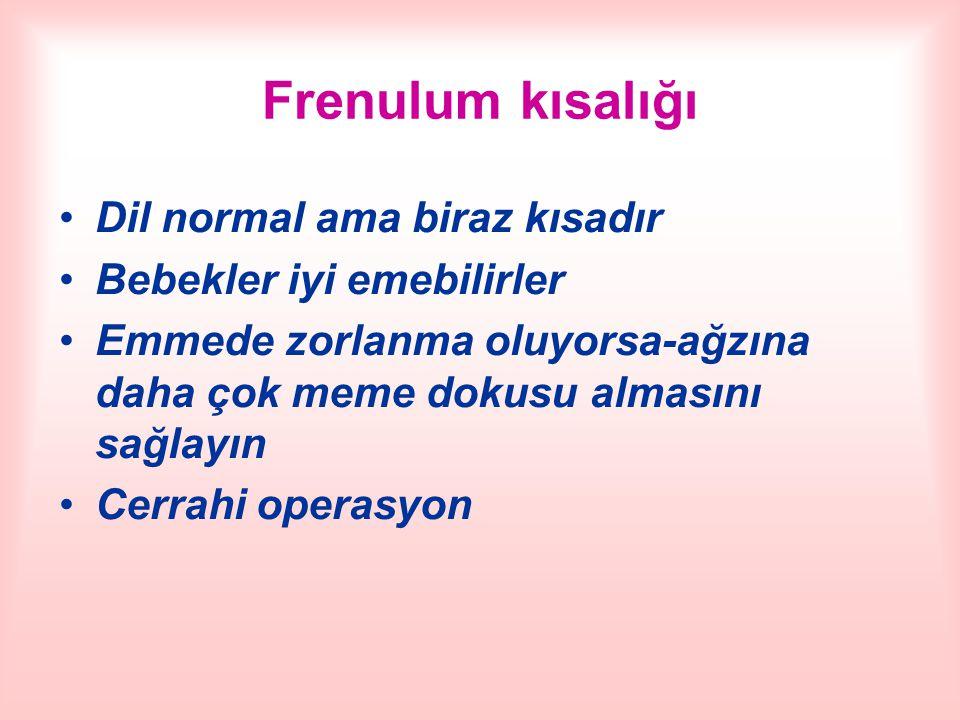 Frenulum kısalığı Dil normal ama biraz kısadır