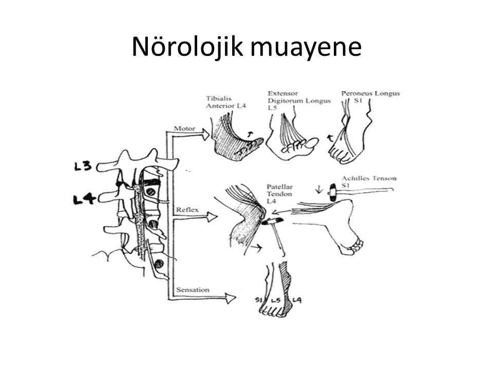 Nörolojik muayene