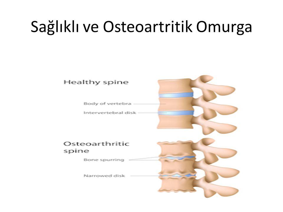 Sağlıklı ve Osteoartritik Omurga