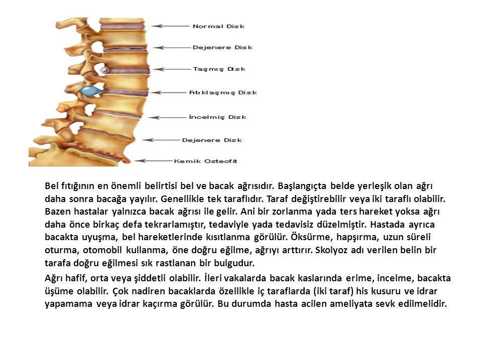 Bel fıtığının en önemli belirtisi bel ve bacak ağrısıdır