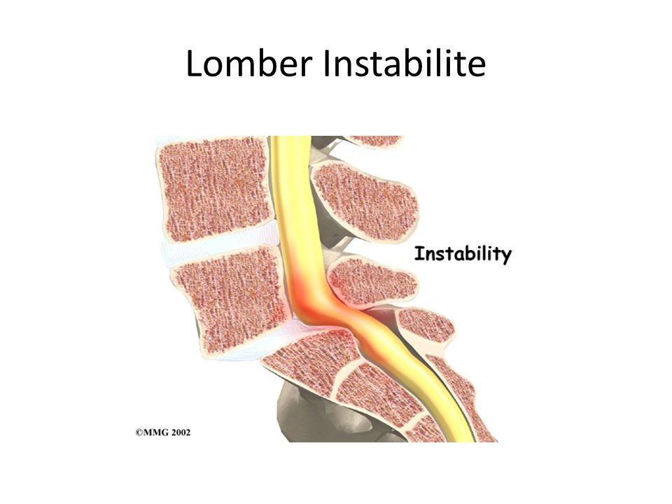 Lomber Instabilite