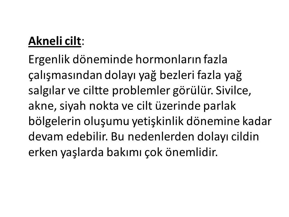 Akneli cilt: