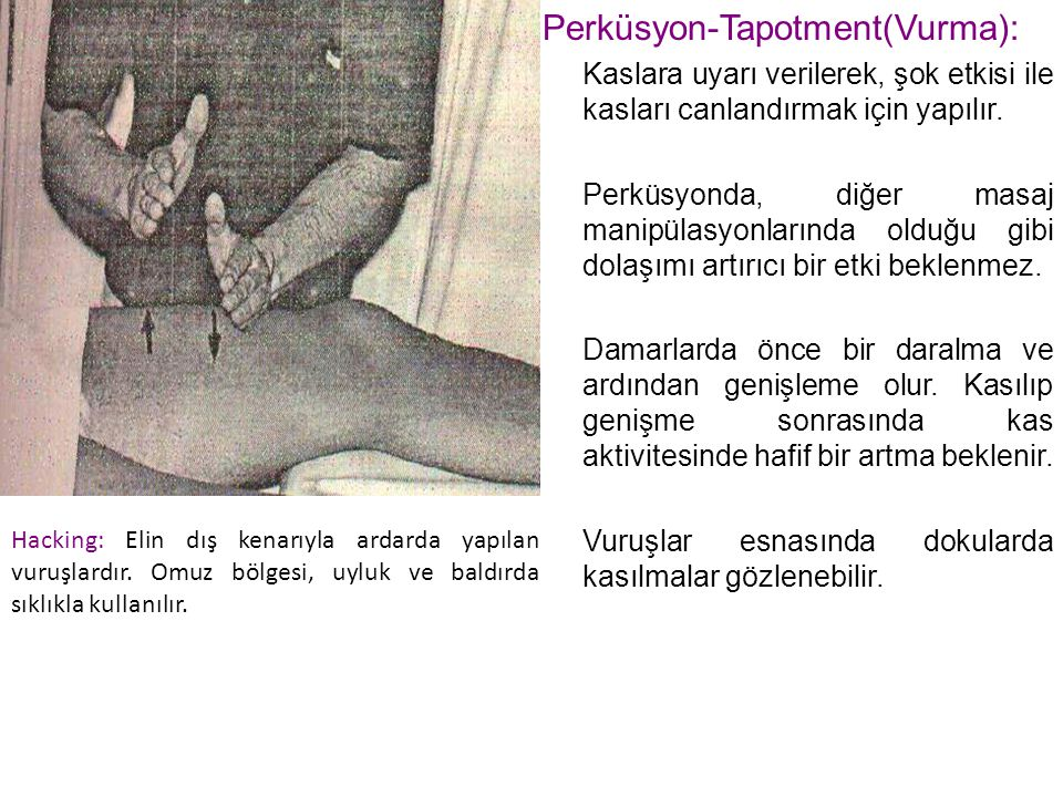 Perküsyon-Tapotment(Vurma):