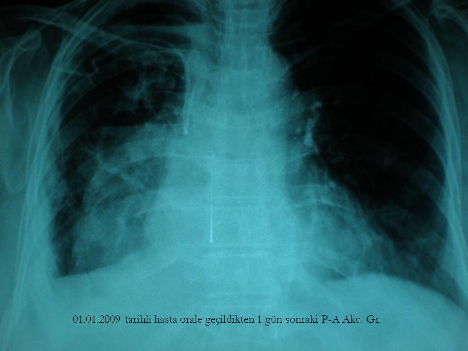01.01.2009 tarihli hasta orale geçildikten 1 gün sonraki P-A Akc. Gr.